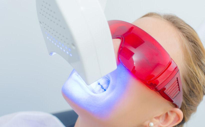 Zusammensetzung von Zahnbleaching Sets mit LED Lampe – welche Inhaltsstoffe sorgen für das Weiß der Zähne